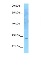 SOCS2 antibody Western blot of U937 Cell lysate. Antibody concentration 1 ug/ml.  This image was taken for the unconjugated form of this product. Other forms have not been tested.