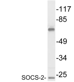 Western blot of SOCS-2 antibody in extracts from Jurkat cells.