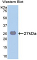 Western blot of recombinant SOCS3.  This image was taken for the unconjugated form of this product. Other forms have not been tested.
