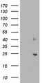 HEK293T cells were transfected with the pCMV6-ENTRY control (Left lane) or pCMV6-ENTRY SOCS3 (Right lane) cDNA for 48 hrs and lysed. Equivalent amounts of cell lysates (5 ug per lane) were separated by SDS-PAGE and immunoblotted with anti-SOCS3.