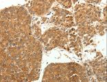 Immunohistochemistry of Human liver cancer using SOCS3 Polyclonal Antibody at dilution of 1:20.