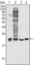 Western blot using SOD1 mouse monoclonal antibody against HeLa (1), NIH/3T3 (2), A549 (3) and A431 (4) cell lysate.