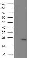 SOD2 / Mn SOD Antibody - HEK293T cells were transfected with the pCMV6-ENTRY control (Left lane) or pCMV6-ENTRY SOD2 (Right lane) cDNA for 48 hrs and lysed. Equivalent amounts of cell lysates (5 ug per lane) were separated by SDS-PAGE and immunoblotted with anti-SOD2.