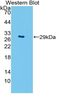 Western blot of recombinant SOD3.