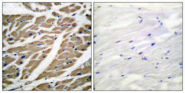 Sodium Channel Antibody - Immunohistochemistry analysis of paraffin-embedded human heart tissue, using Sodium Channel-pan Antibody. The picture on the right is blocked with the synthesized peptide.