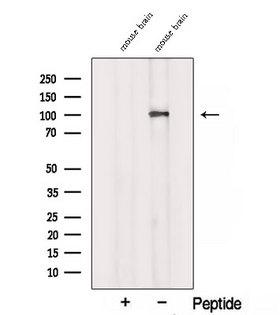 SORT1 / Sortilin Antibody - Western blot analysis of extracts of mouse brain tissue using Sortilin antibody. The lane on the left was treated with blocking peptide.