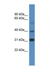 SOX1 antibody Western blot of 293T Cell lysate. Antibody concentration 1 ug/ml. This image was taken for the unconjugated form of this product. Other forms have not been tested.