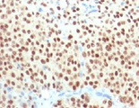 IHC testing of FFPE melanoma with SOX10 antibody (clone SBX10-1). Required HIER: boil sections in pH6 10mM citrate buffer for 10-20 minutes, followed by cooling at RT for 20 minutes, prior to staining.
