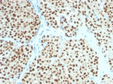 IHC testing of FFPE human melanoma with SOX10 antibody (clone SOX10/991). Required HIER: boil tissue sections in 10mM citrate buffer, pH 6, for 10-20 min followed by cooling at RT for 20 min.