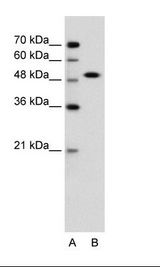 SOX11 Antibody - A: Marker, B: Jurkat Cell Lysate.  This image was taken for the unconjugated form of this product. Other forms have not been tested.