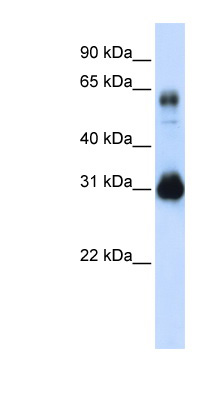 SOX15 antibody LS-C101439 Western blot of Transfected 293T cell lysate.  This image was taken for the unconjugated form of this product. Other forms have not been tested.