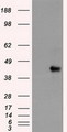 HEK293T cells were transfected with the pCMV6-ENTRY control (Left lane) or pCMV6-ENTRY SOX17 (Right lane) cDNA for 48 hrs and lysed. Equivalent amounts of cell lysates (5 ug per lane) were separated by SDS-PAGE and immunoblotted with anti-SOX17.