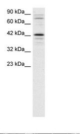 SOX18 Antibody - Jurkat Cell Lysate.  This image was taken for the unconjugated form of this product. Other forms have not been tested.
