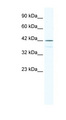 SOX3 antibody LS-B1569 Western blot of Raji lysate.  This image was taken for the unconjugated form of this product. Other forms have not been tested.