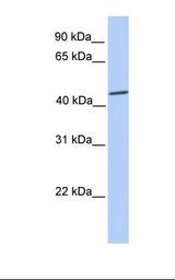 SOX9 Antibody - 721_B cell lysate. Antibody concentration: 1.0 ug/ml. Gel concentration: 12%.  This image was taken for the unconjugated form of this product. Other forms have not been tested.
