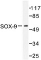 Western blot of SOX-9 (Q175) pAb in extracts from 293 cells treated with PBS 60'.