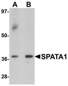 SP-2 / SPATA1 Antibody - Western blot analysis of SPATA1 in A20 cell lysate with SPATA1 antibody at (A) 1 and (B) 2 ug/ml.