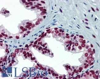 Anti-SP1 antibody IHC of human prostate. Immunohistochemistry of formalin-fixed, paraffin-embedded tissue after heat-induced antigen retrieval. Antibody LS-B6148 concentration 5 ug/ml.