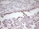 IHC of paraffin-embedded Adenocarcinoma of Human ovary tissue using anti-SP110 mouse monoclonal antibody. (Heat-induced epitope retrieval by 1 mM EDTA in 10mM Tris, pH8.5, 120°C for 3min).