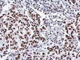 Anti-SP3 antibody used in IHC (Formalin-fixed paraffin-embedded sections).