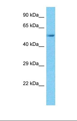 Western blot of Human Thyroid Tumor. SPARCL1 antibody dilution 1.0 ug/ml.  This image was taken for the unconjugated form of this product. Other forms have not been tested.