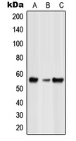 Western blot analysis of GLRB expression in HeLa (A); NIH3T3 (B); rat spleen (C) whole cell lysates.