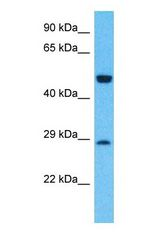 Western blot of GLRB Antibody with human Fetal Lung lysate.  This image was taken for the unconjugated form of this product. Other forms have not been tested.