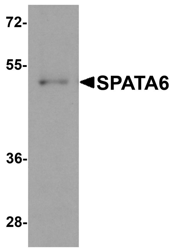 Western blot analysis of SPATA6 in A20 cell lysate with SPATA6 antibody at 1 ug/ml.