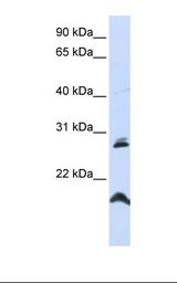 SPATA9 Antibody - HepG2 cell lysate. Antibody concentration: 1.0 ug/ml. Gel concentration: 12%.  This image was taken for the unconjugated form of this product. Other forms have not been tested.