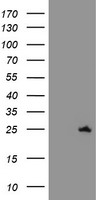 SPATC1L / C21orf56 Antibody - HEK293T cells were transfected with the pCMV6-ENTRY control (Left lane) or pCMV6-ENTRY C21orf56 (Right lane) cDNA for 48 hrs and lysed. Equivalent amounts of cell lysates (5 ug per lane) were separated by SDS-PAGE and immunoblotted with anti-C21orf56.