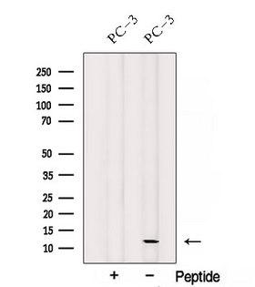 SPCS1 Antibody - Western blot analysis of extracts of PC-3 cells using SPCS1 antibody. The lane on the left was treated with blocking peptide.