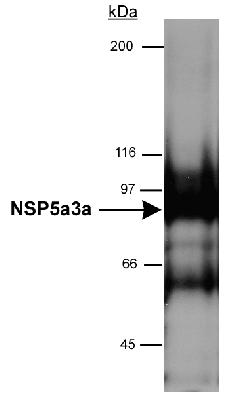 Detection of NSP5a3a in HeLa whole cell lysate (RIPA) using NSP-5a3a [Novel Structure Protein, 5 alpha, 3 alpha] Antibody. 0.5 ug/ml dilution, 15 second ECL detection.  This image was taken for the unconjugated form of this product. Other forms have not been tested.