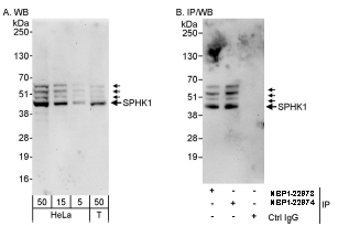 SPHK / SPHK1 Antibody - SPHK1 by Western Blot and Immunoprecipitation. Samples: Whole cell lysate from HeLa (5, 15 and 50 mcg for WB; 1 mg for IP, 20% of IP loaded) and 293T (T; 50 mcg) cells. Antibodies: Affinity purified rabbit anti- SPHK1 antibody used for WB at 0.1 mcg/ml (A) and 1 mcg/ml (B) and used for IP at 10 mcg/mg lysate.  This image was taken for the unconjugated form of this product. Other forms have not been tested.