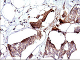 IHC of paraffin-embedded Adenocarcinoma of Human breast tissue using anti-SPHK1 mouse monoclonal antibody. (Heat-induced epitope retrieval by 1 mM EDTA in 10mM Tris, pH8.5, 120°C for 3min).