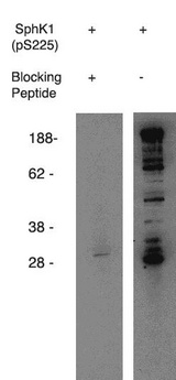 SPHK / SPHK1 Antibody - Western blot of anti-mouse SphK1 (pS225) (phospho-Sphingosine Kinase 1,(pS225), Mouse reactive) on mouse B-cell lysate. Antibody used at 1 ug/ml with phosphorylated blocking peptideNo. X1877B) (lane A) and without (lane B).