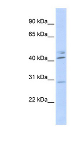 SPIC Antibody - SPIC antibody Western blot of Transfected 293T cell lysate. This image was taken for the unconjugated form of this product. Other forms have not been tested.