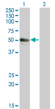 Western Blot analysis of SPN expression in transfected 293T cell line by SPN monoclonal antibody (M01), clone 3G8.Lane 1: SPN transfected lysate(59.327 KDa).Lane 2: Non-transfected lysate.