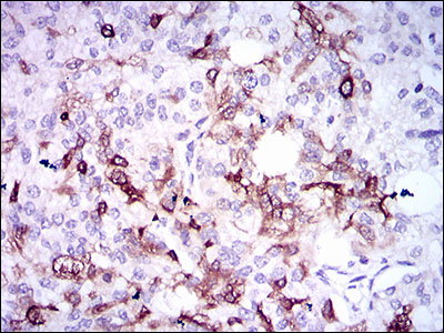 IHC of paraffin-embedded prostate cancer tissues using SPP1 mouse monoclonal antibody with DAB staining.