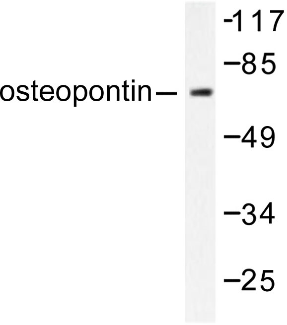 Western blot of Osteopontin/SPP1 (L285) pAb in extracts from LOVO cells.
