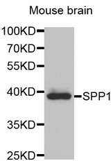 Western blot analysis of extracts of mouse brain, using SPP1 antibody at 1:1000 dilution. The secondary antibody used was an HRP Goat Anti-Rabbit IgG (H+L) at 1:10000 dilution. Lysates were loaded 25ug per lane and 3% nonfat dry milk in TBST was used for blocking.