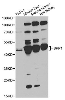 Western blot analysis of extracts of various cell lines, using SPP1 antibody at 1:1000 dilution. The secondary antibody used was an HRP Goat Anti-Rabbit IgG (H+L) at 1:10000 dilution. Lysates were loaded 25ug per lane and 3% nonfat dry milk in TBST was used for blocking. An ECL Kit was used for detection and the exposure time was 15s.