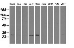 Western blot of extracts (35 ug) from 9 different cell lines by using anti-SPR monoclonal antibody.