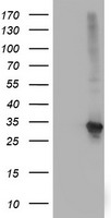 SPR Antibody - HEK293T cells were transfected with the pCMV6-ENTRY control (Left lane) or pCMV6-ENTRY SPR (Right lane) cDNA for 48 hrs and lysed. Equivalent amounts of cell lysates (5 ug per lane) were separated by SDS-PAGE and immunoblotted with anti-SPR.