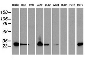 SPR Antibody - Western blot of extracts (35 ug) from 9 different cell lines by using anti-SPR monoclonal antibody.