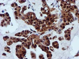 SPR Antibody - IHC of paraffin-embedded Carcinoma of Human lung tissue using anti-SPR mouse monoclonal antibody.