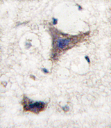 SPRED1 Antibody - Formalin-fixed and paraffin-embedded human brain tissue reacted with SPRED1 antibody , which was peroxidase-conjugated to the secondary antibody, followed by DAB staining. This data demonstrates the use of this antibody for immunohistochemistry; clinical relevance has not been evaluated.