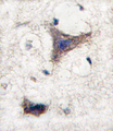 Formalin-fixed and paraffin-embedded human brain tissue reacted with SPRED1 antibody , which was peroxidase-conjugated to the secondary antibody, followed by DAB staining. This data demonstrates the use of this antibody for immunohistochemistry; clinical relevance has not been evaluated.