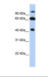 SPRING / TRIM9 Antibody - HepG2 cell lysate. Antibody concentration: 1.0 ug/ml. Gel concentration: 12%.  This image was taken for the unconjugated form of this product. Other forms have not been tested.
