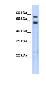TRIM9 antibody LS-C109887 Western blot of Transfected 293T cell lysate.  This image was taken for the unconjugated form of this product. Other forms have not been tested.