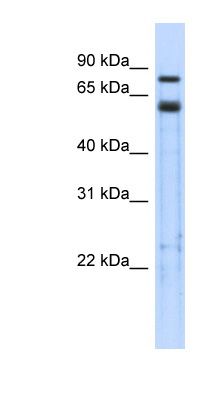 TRIM9 antibody Western blot of Transfected 293T cell lysate. This image was taken for the unconjugated form of this product. Other forms have not been tested.